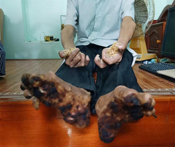Căn bệnh tay chân hóa thành gỗ từng xuất hiện ở Việt Nam