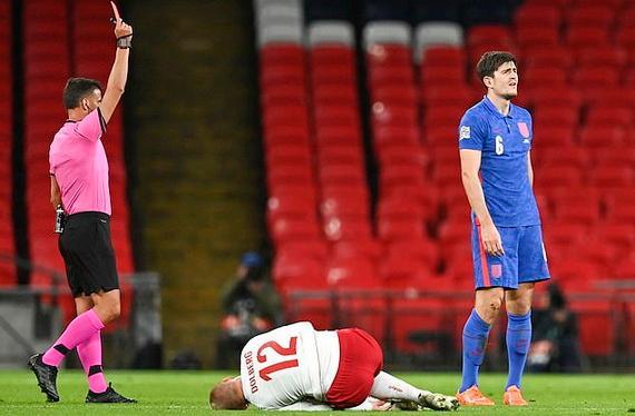 Anh phải chơi thiếu người từ phút 31 sau thẻ đỏ của Maguire
