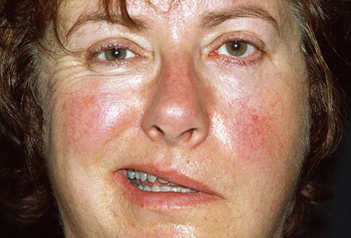 Các bất thường nhỏ trên gương mặt hé lộ các bệnh nguy hiểm
